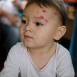 Chenti et sa varicelle